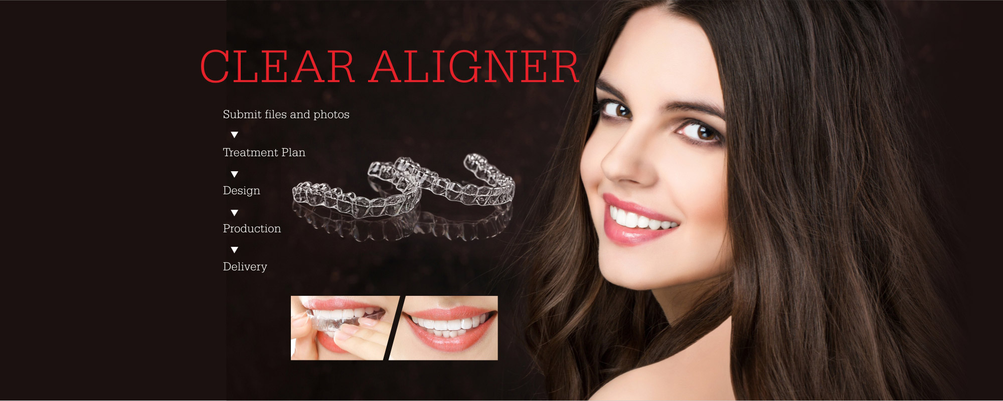 CLEAR ALIGNER,Submit files and photos,Treatment Plan, Design, Production ,Delivery